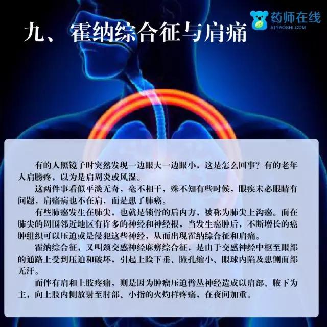 """健康丨你应当关注肺癌的九大""""警示灯"""""""
